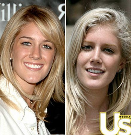 heidi montag surgery before and after. Heidi Montag is Cha$ing Beauty